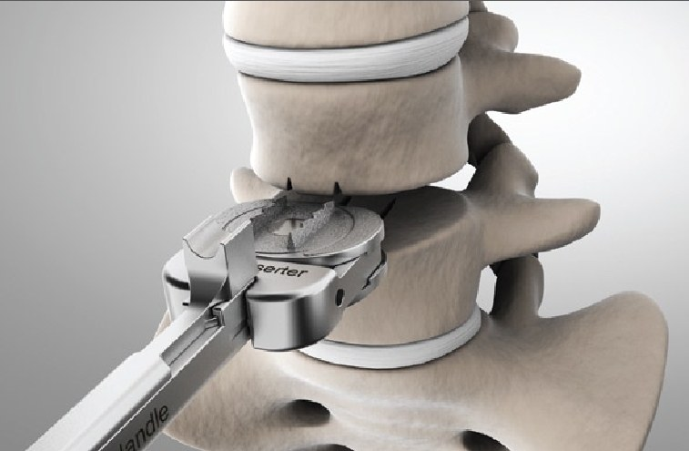 lumbar disc prosthesis implantation surgery